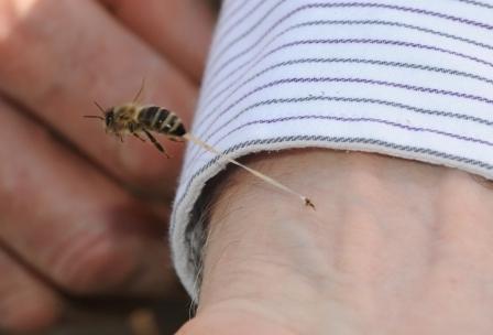 Picaduras de abejas melíferas » ABEJAPEDIA
